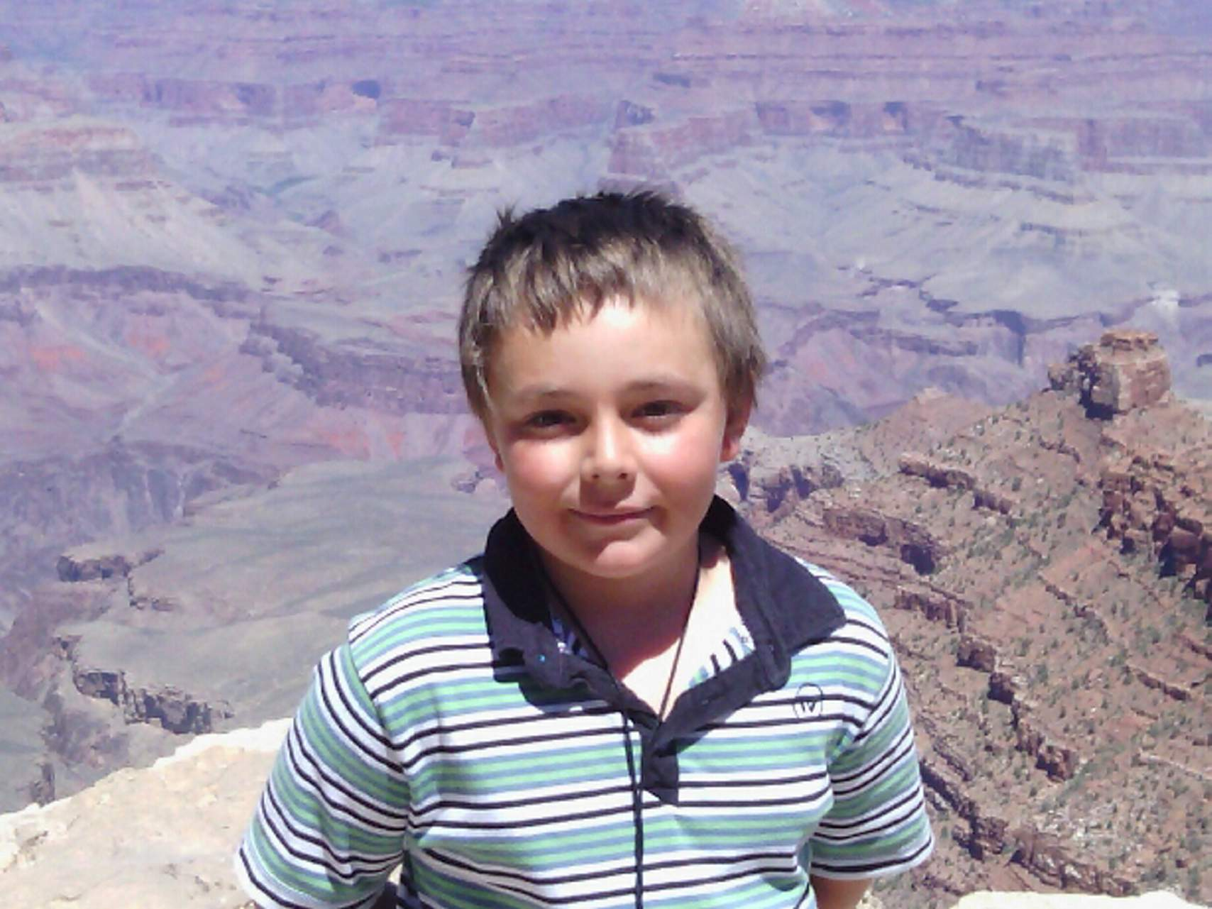 Nine-year-old Keaton Hankins-Benge, pictured at Grand Canyon National Park  last summer, had reconstructive surgery on his face this week after a  neighbor's ...