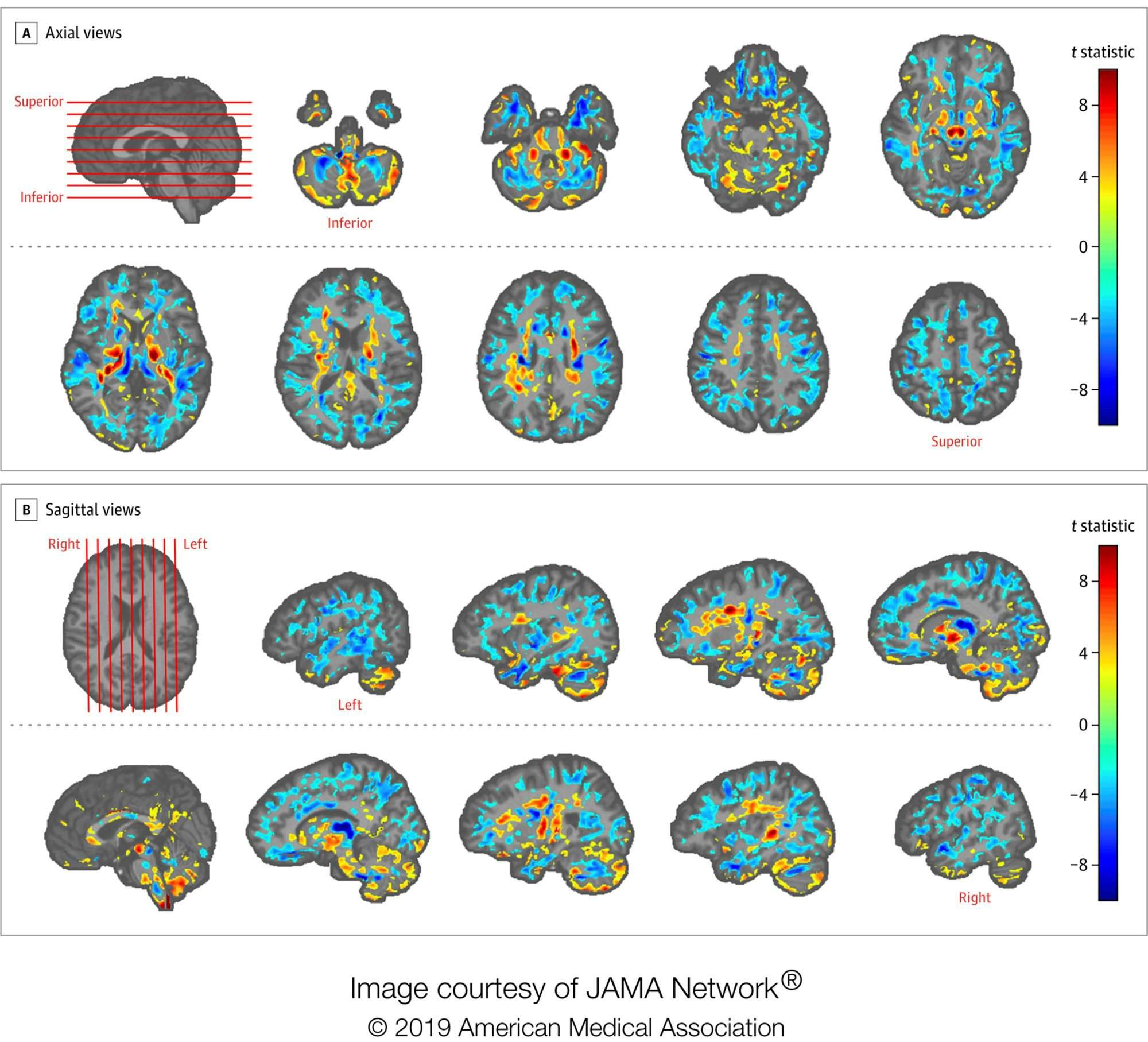 Scans Show Possible Link Between Brain >> Diplomats Brain Scans Show Differences Add To Cuba Mystery